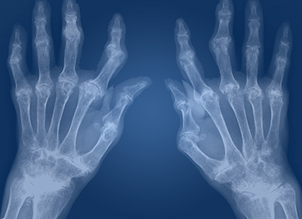 Ревматоидный артрит под контролем
