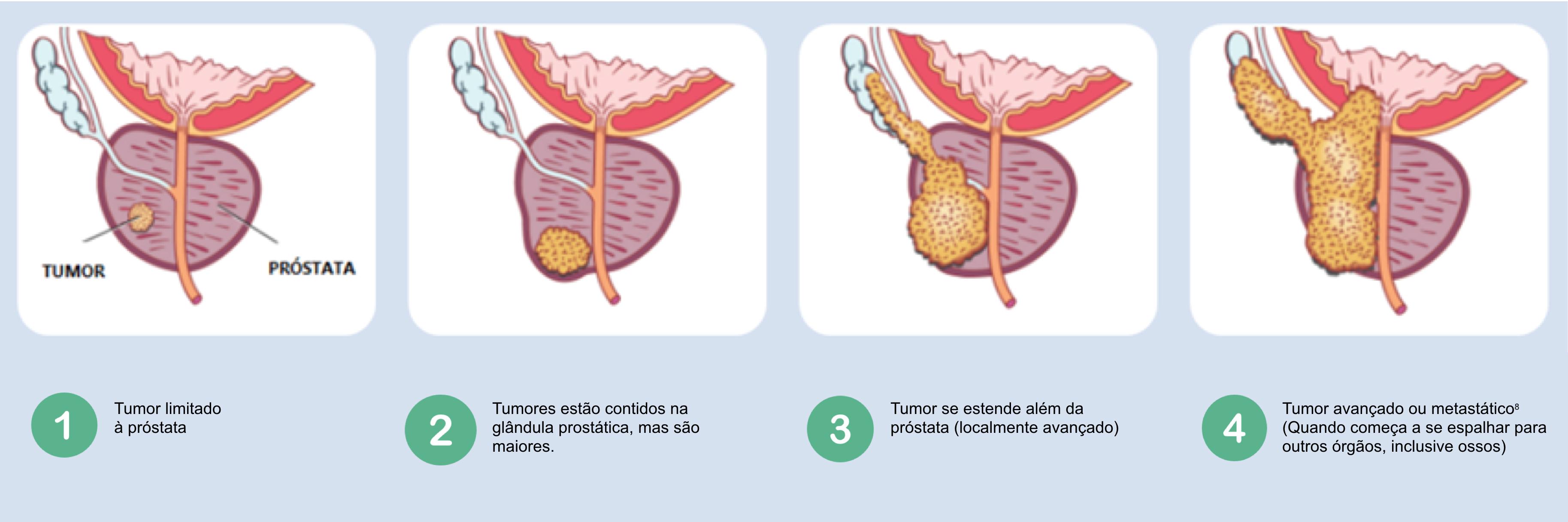 incidencia del cancer de prostata en colombia