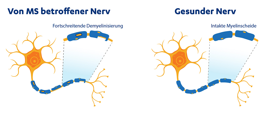 Nervenzelle: Multiple Sklerose