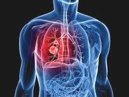 L'area terapeutica dell'Immunologia