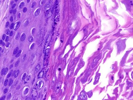 Imagen Microscópica Oncología