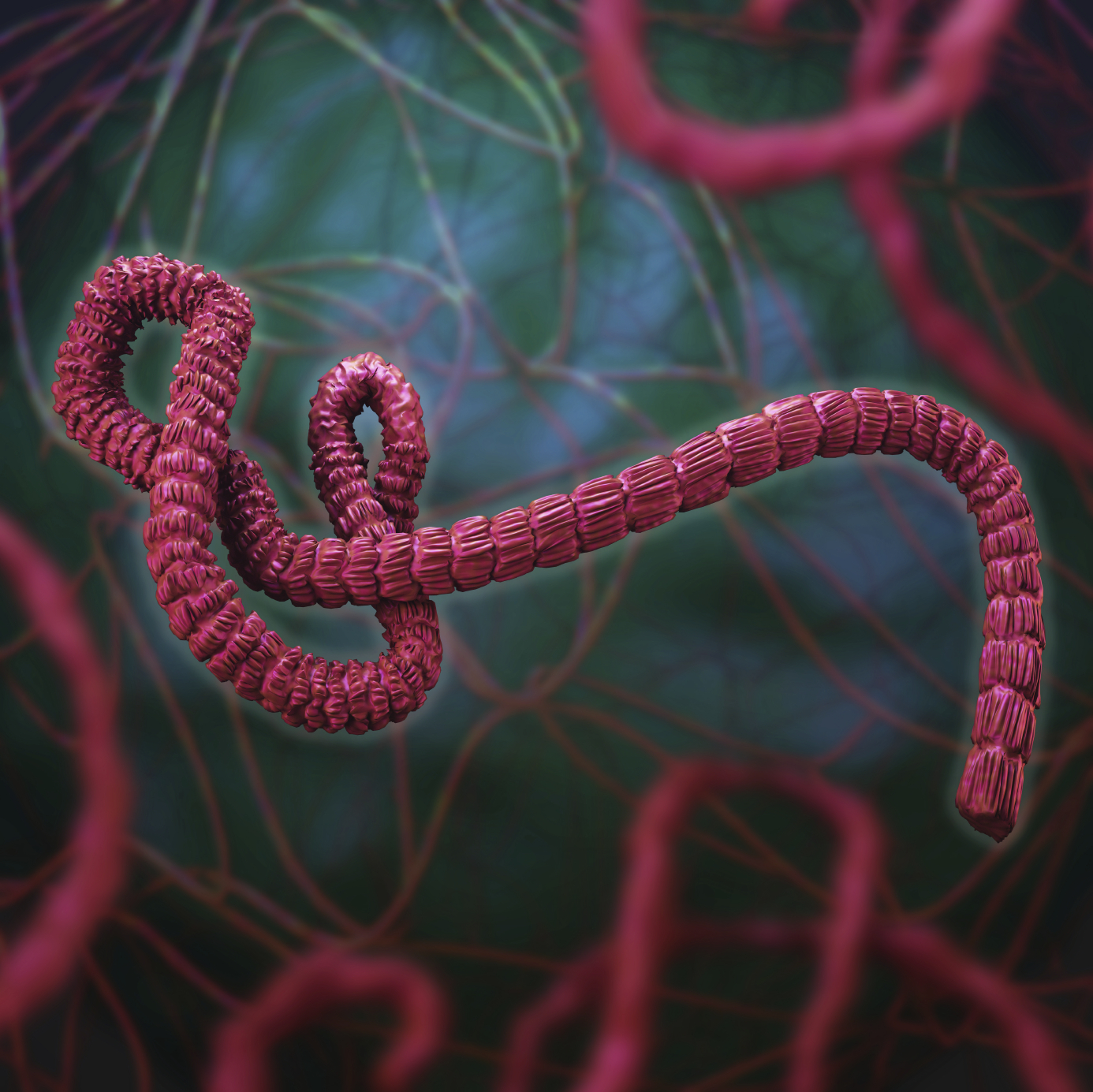 ebola virus is back What are the signs and symptoms of ebola virus disease.