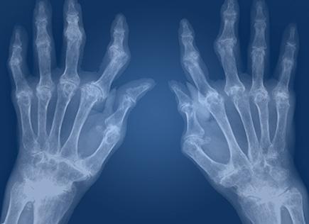 Artrite reumatoide alle mani